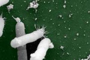 La Xylella Fastidiosa, parassita, che in Italia ha colpito soprattutto gli olivi pugliesi, è davvero un rischio per la vigna? A WineNews il parere di due esperti, Leonardo Valenti e Attilio Scienza , docenti di viticoltura dell'Università di Milano